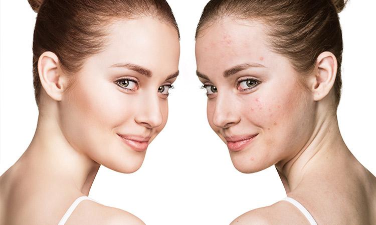 درمانهای جوش صورت و بدن