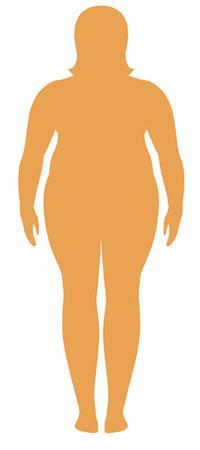شاخصه توده بدنی چاق
