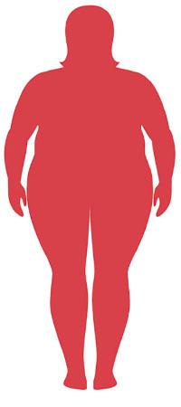 شاخصه توده بدنی چاق مفرط